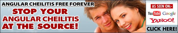 Angular Cheilitis Free Forever Review